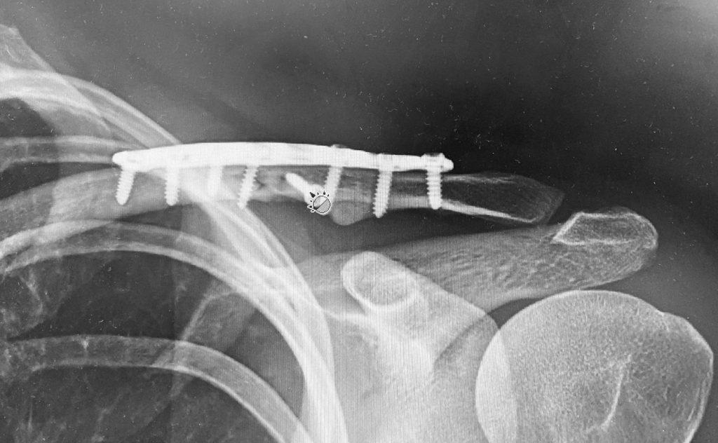 broken clavicle horse rider