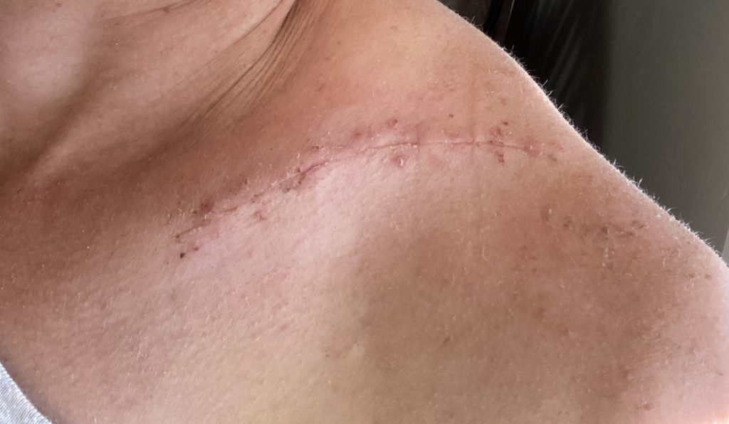 broken collarbone scar